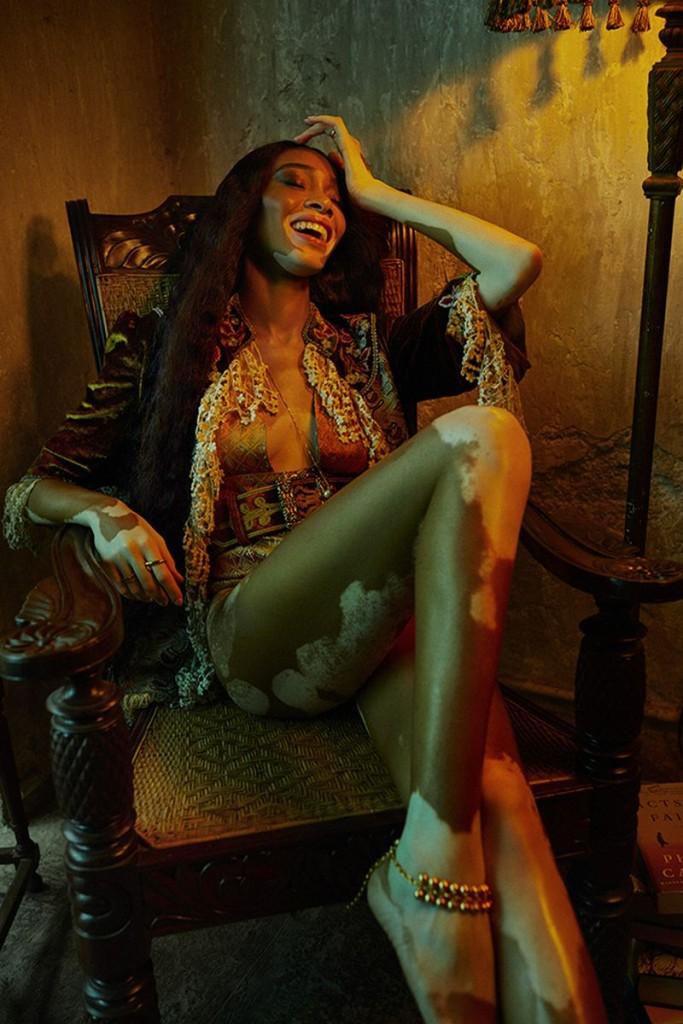 Billy-Kidd-Winnie-Harlow-Vogue-India-March-2020-3